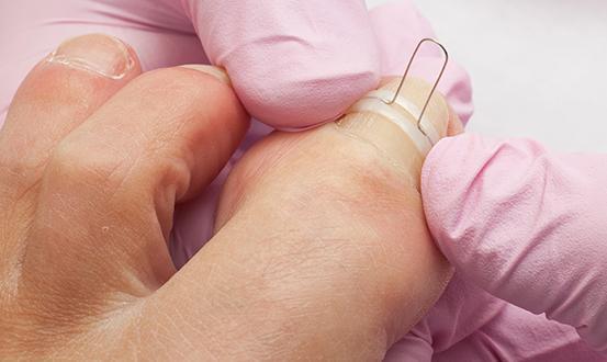 Soin des ongles par un podologue