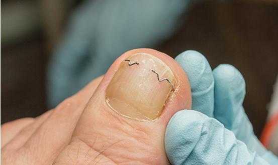 Orthèse ongle